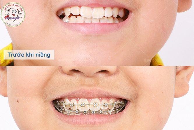 Niềng răng tại Nha Khoa Việt Nha