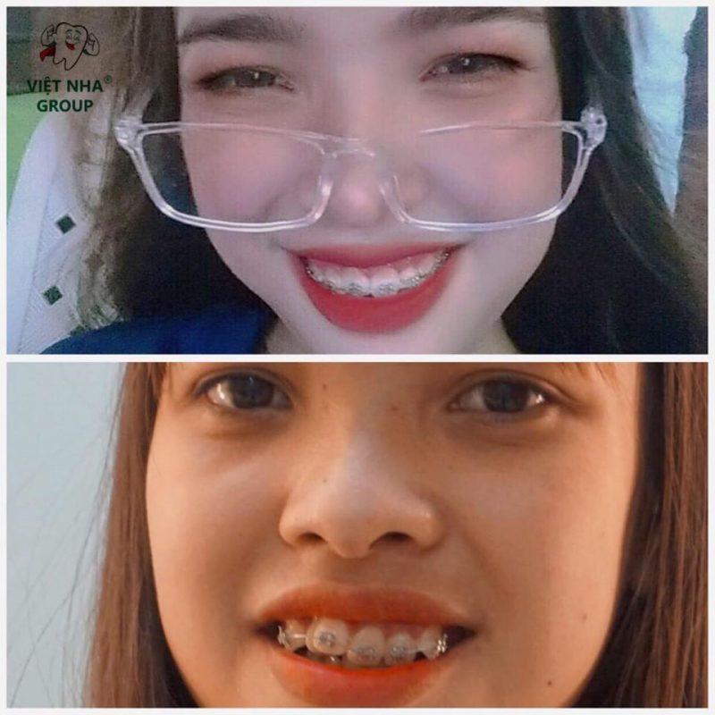 Hình ảnh niềng răng thực tế tại Nha Khoa Việt Nha