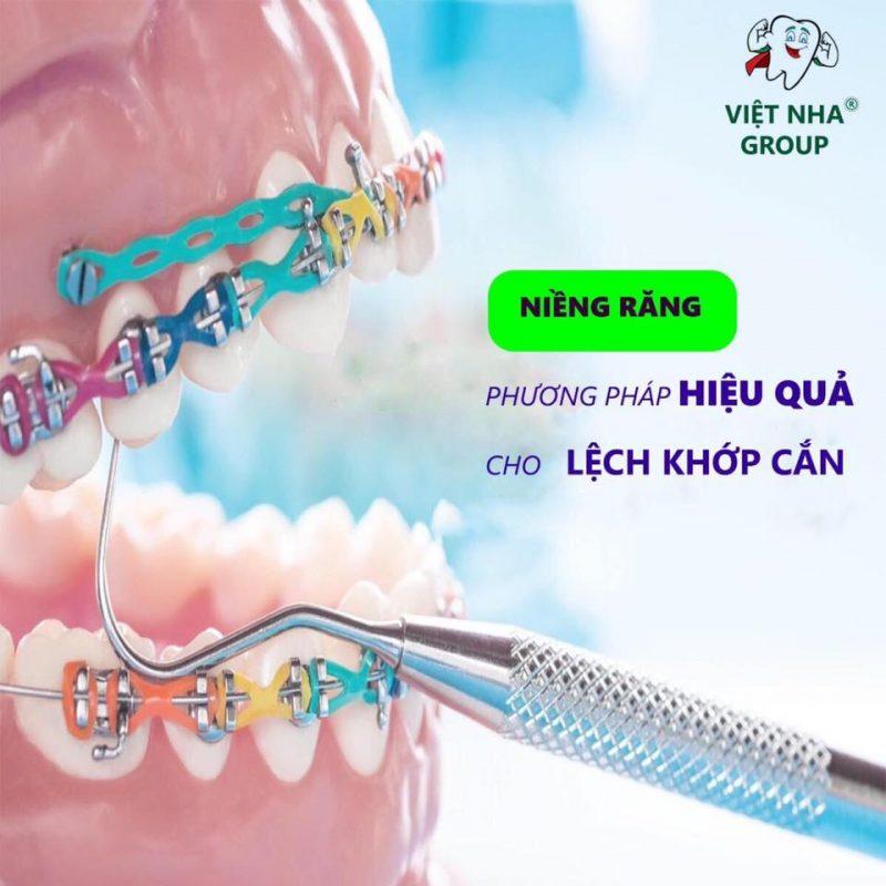 Niềng răng phương pháp hiệu quả cho lệch khớp cắn - Nha Khoa Việt Nha