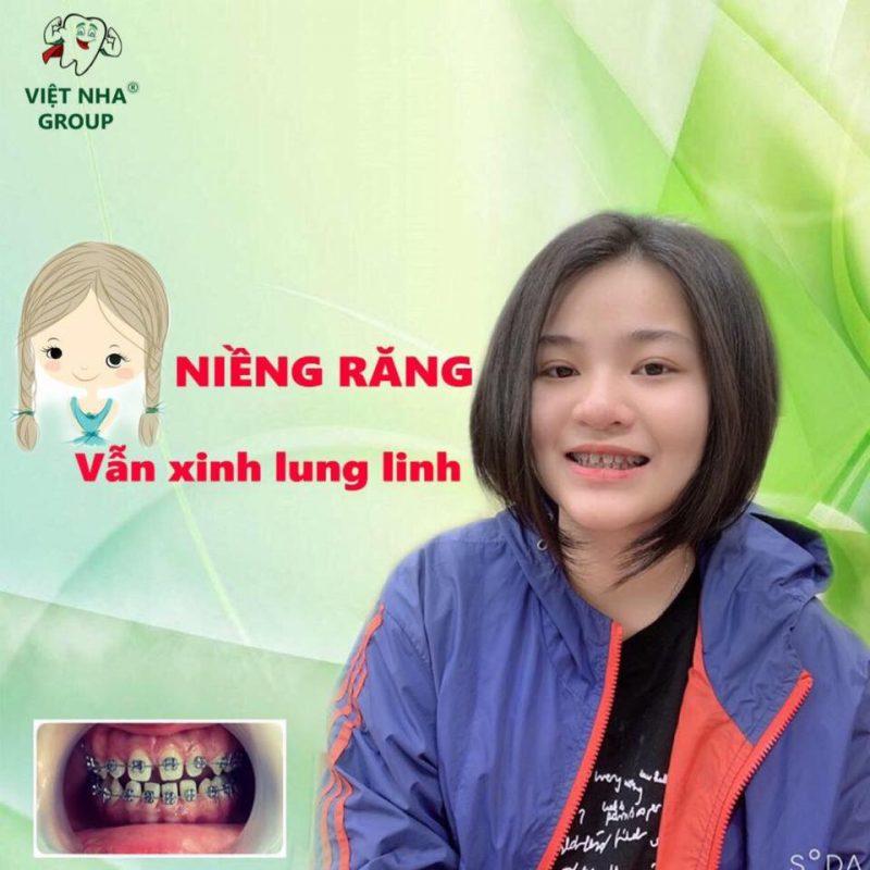 Phương pháp Niềng răng vẫn xinh lung linh tại Nha Khoa Việt Nha