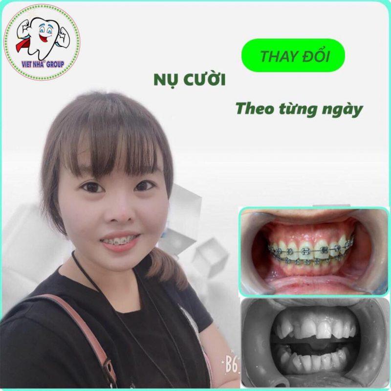Hình ảnh khách hàng niềng răng tại Nha Khoa Việt Nha