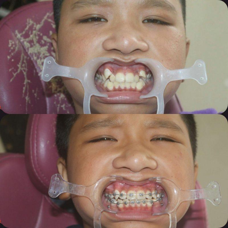 Niềng răng cho trẻ giúp khắc phục răng hô. răng lệch khớp cắn - Nha Khoa Việt Nha