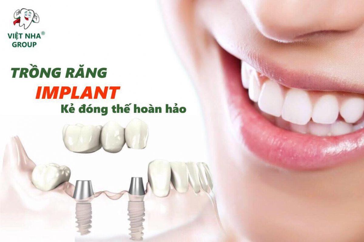 Trồng răng Implant - Nha khoa Việt Nha