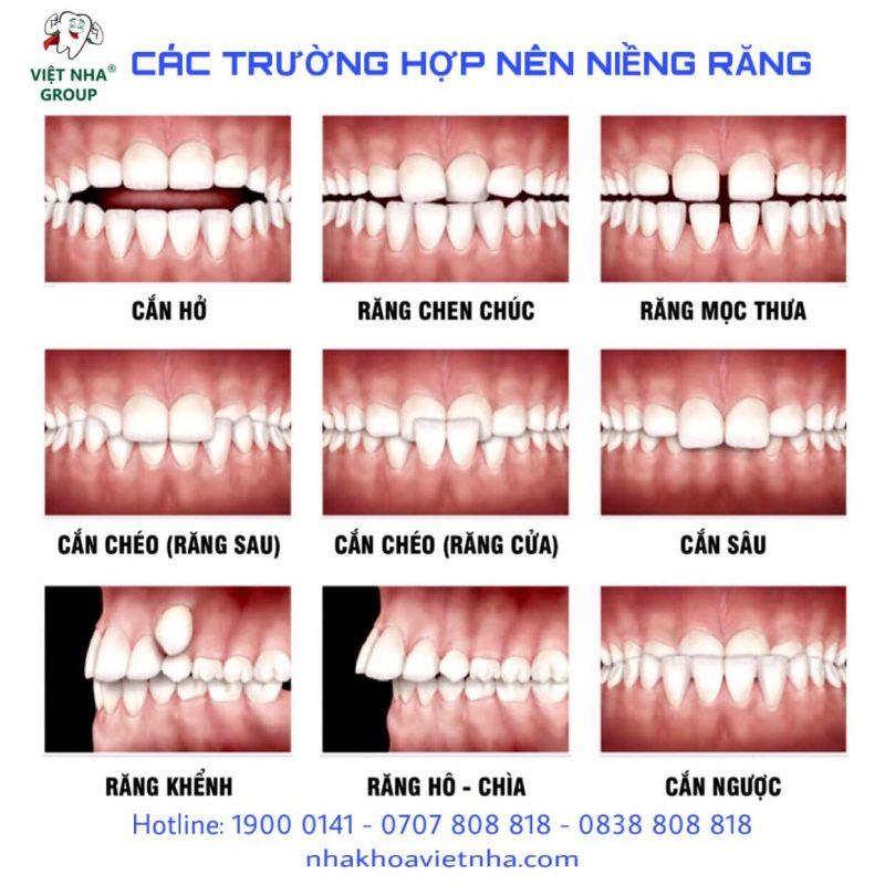 Các dạng răng bị lệch khớp cắn - Nha Khoa Việt Nha