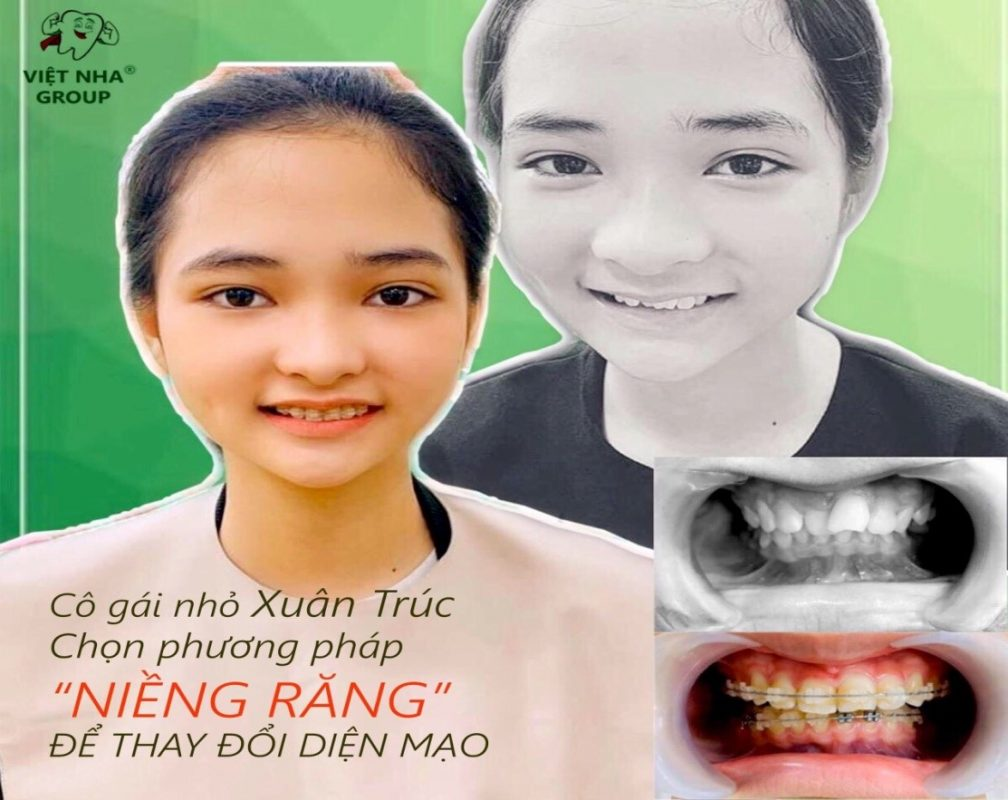 Địa chỉ niềng răng tốt nhất tại Quận Tân Bình - Hình ảnh thực tế 1