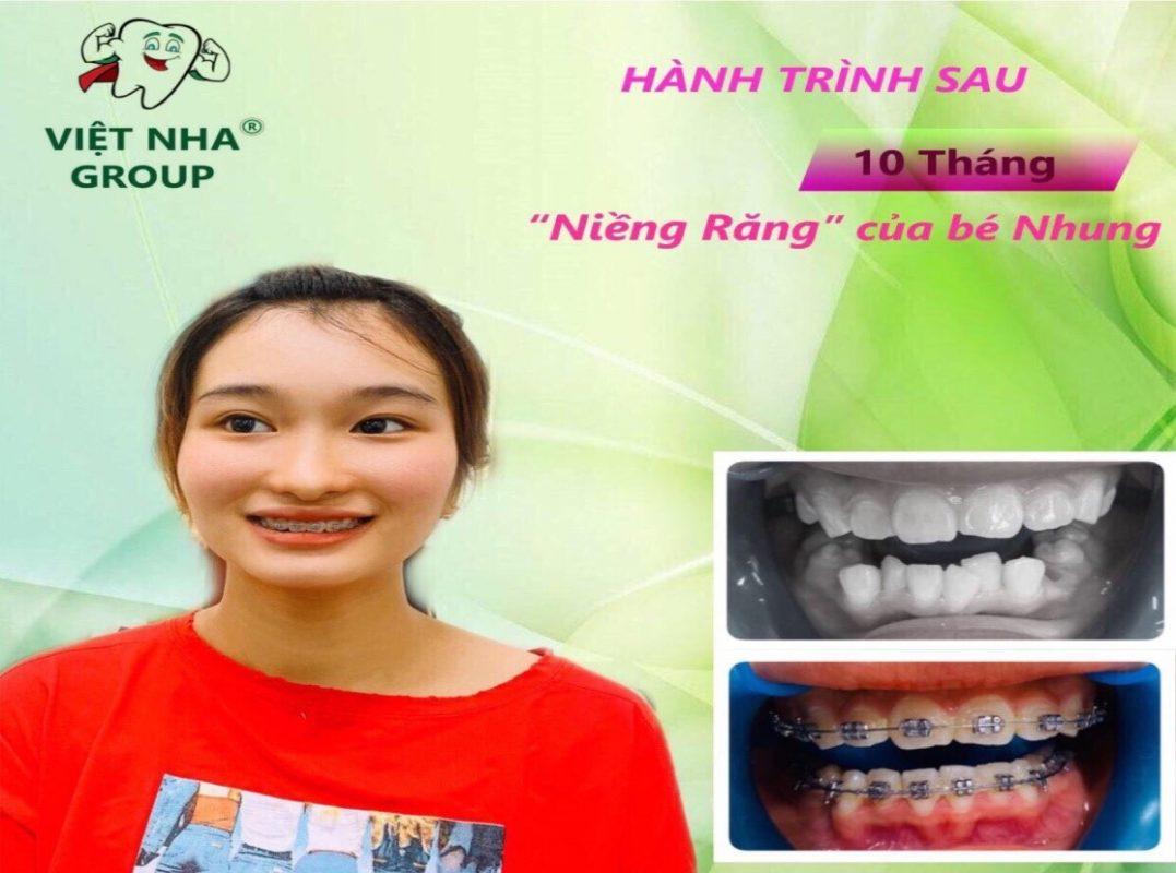 Địa chỉ niềng răng uy tín tại Quận Tân Bình - Hình ảnh thực tế 2