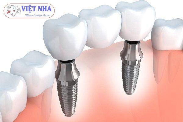 Địa chỉ cấy ghép răng Implant uy tín - Nha Khoa Việt Nha