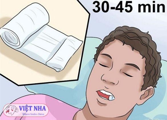 Cắn chặt gòn/gạt trong vòng 30 phút - Nha Khoa Việt Nha