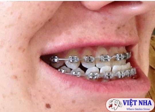 Niềng răng chỉnh khớp cắn ngược - Nha Khoa Việt Nha