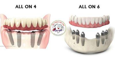 Kỹ thuật trồng răng Implant All On 4 - All On 6 - Nha Khoa  Việt Nha
