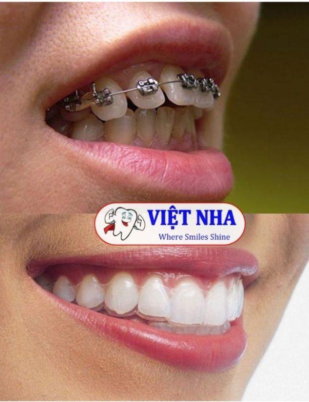 Niềng răng - Cách khắc phục răng hô hiệu quả - Nha Khoa Việt Nha
