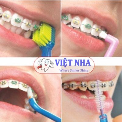 Lựa chọn bàn chải đúng để bảo vệ sức khỏe răng miệng