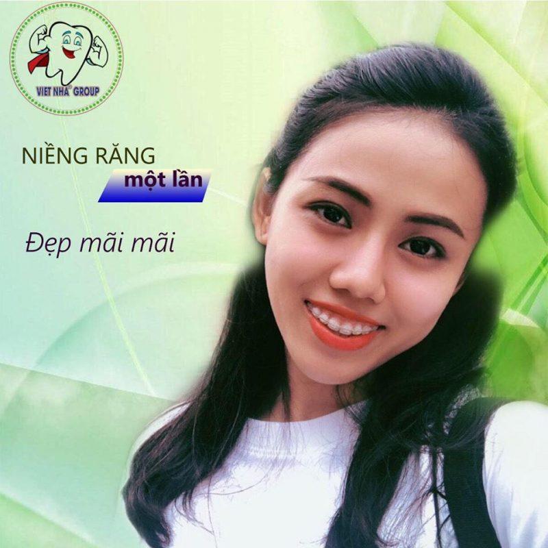 Hình ảnh thực tế Niềng răng mắc cài sứ tại Nha Khoa Việt Nha