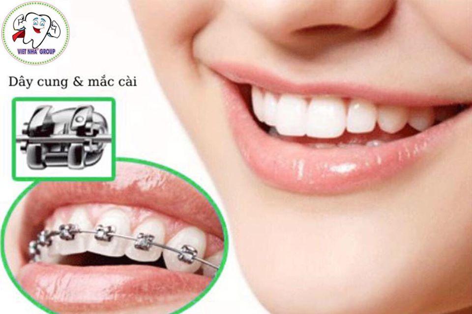Niềng răng mắc cài kim loại - Nha khoa Việt Nha