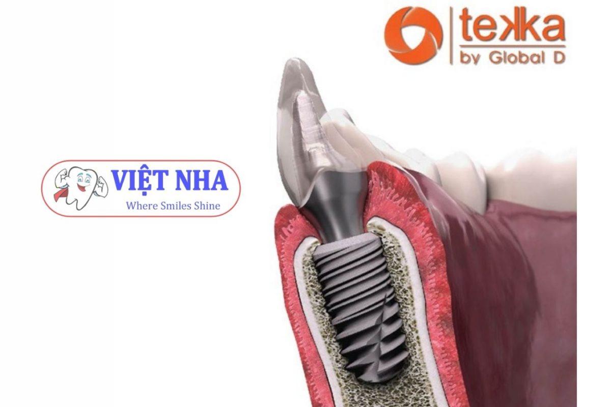 Implant Tekka (Pháp) - Nha Khoa Việt Nha