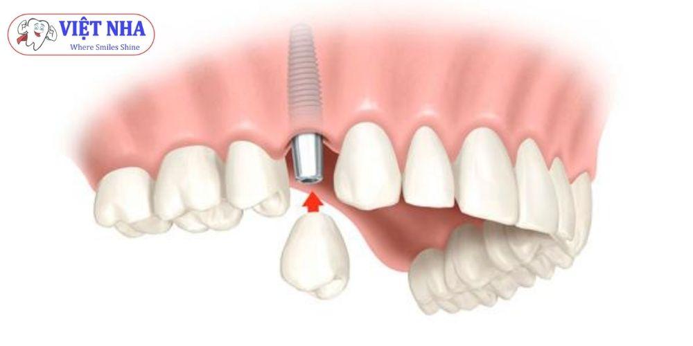 Implant nha khoa thay thế 1 răng
