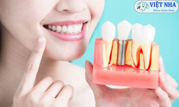Cấy ghép Implant phục hồi răng giả cho nụ cười tự tin quay trở lại