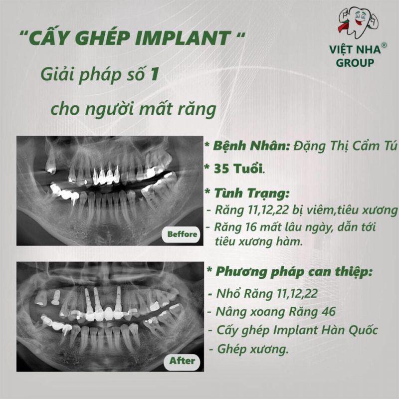 Hình ảnh CT thực tế của khách hàng thực hiện quy trình cấy ghép implant tại Nha Khoa Việt Nha