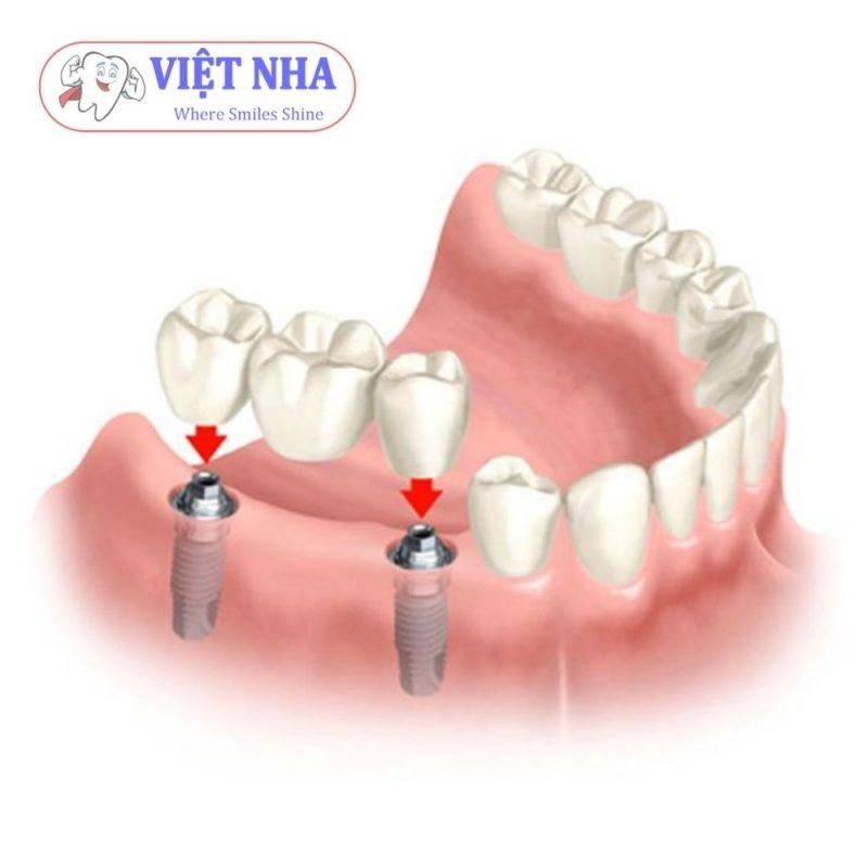 Mất 3 răng - phục hình 2 trụ Implant