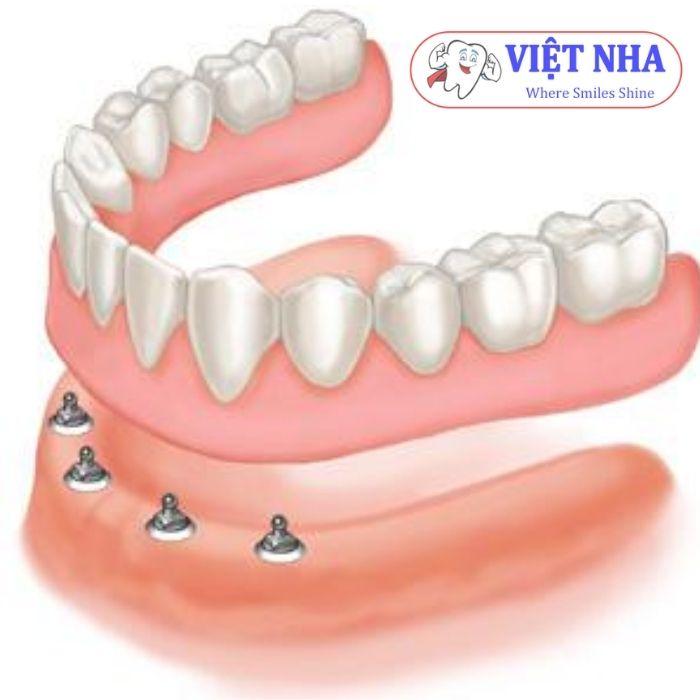 Implant nha khoa hàm dưới - Nha Khoa Việt Nha