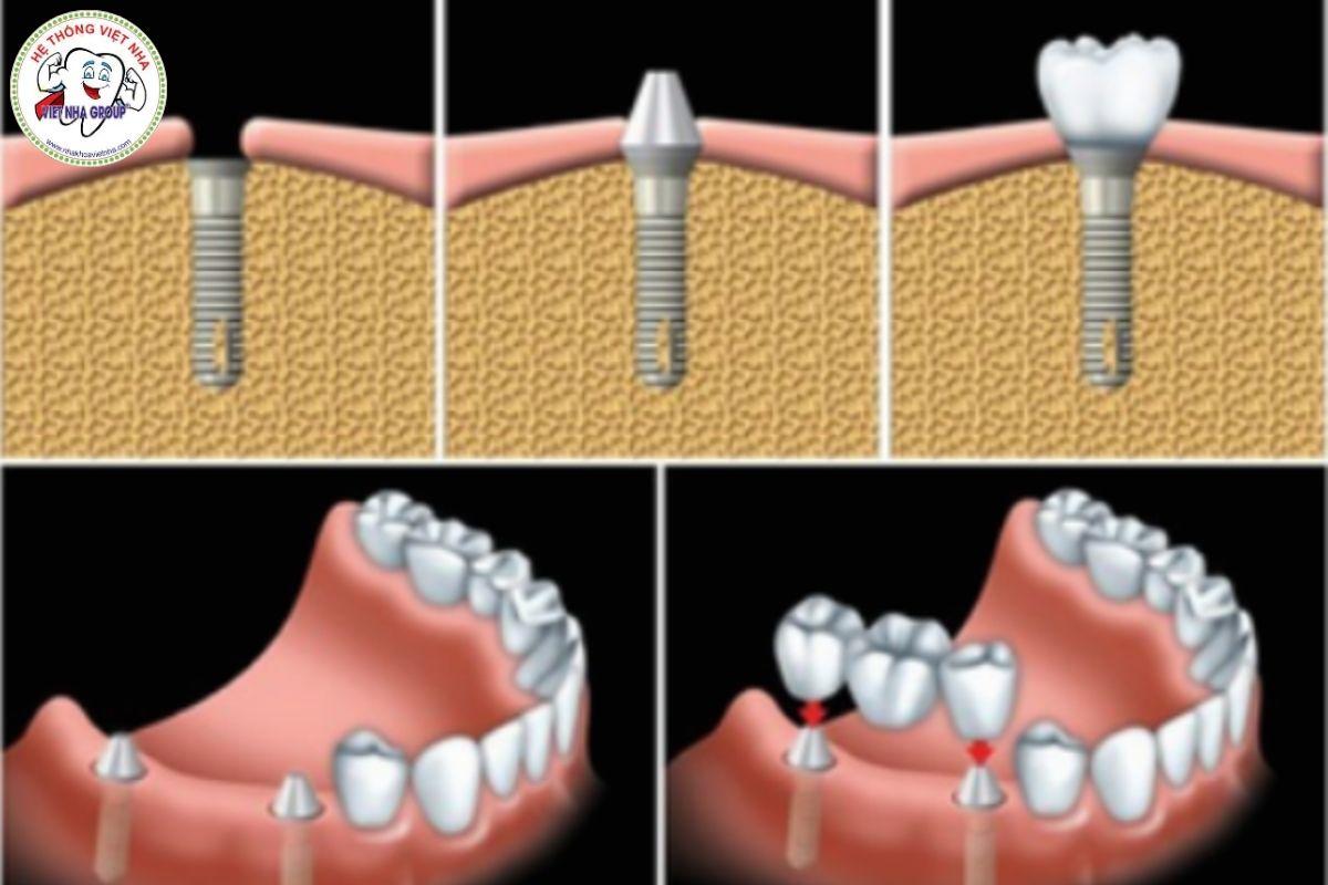 Tùy vào số răng bị mất bác sĩ sẽ đưa ra số trụ Implant cấy ghép và thời gian phục hình răng sứ cho Khách hàng - Nha Khoa Việt Nha