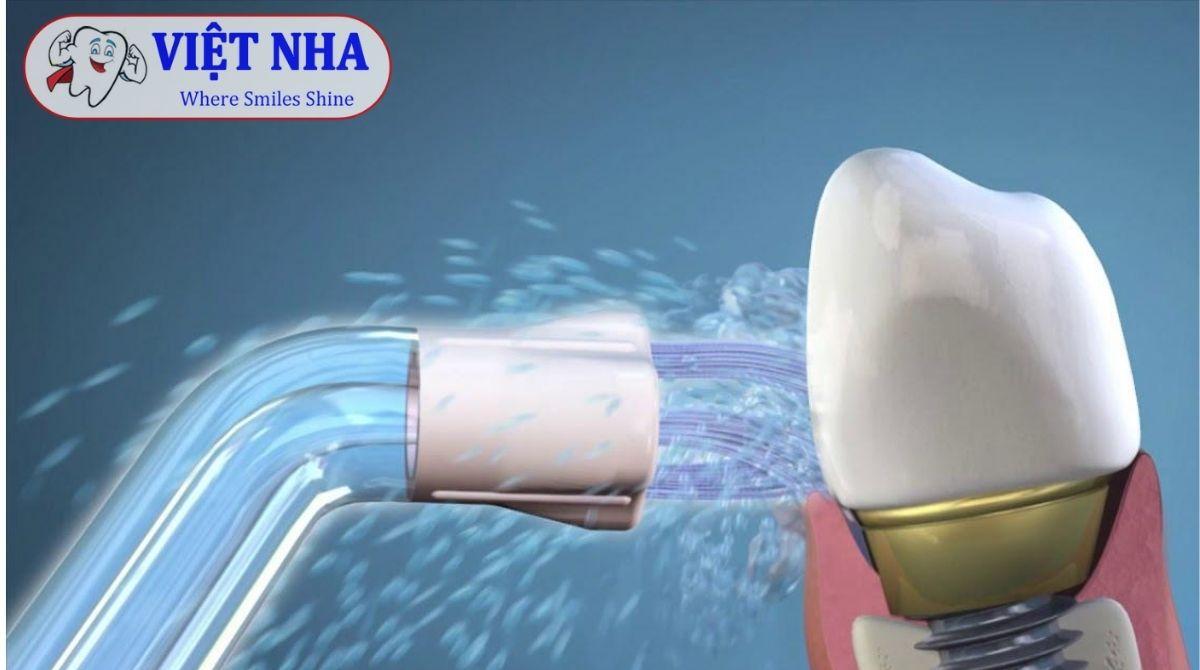 Máy tăm nước - Lựa chọn hoàn hảo cho chăm sóc răng miệng trong quá trình chỉnh nha - Nha Khoa Việt Nha