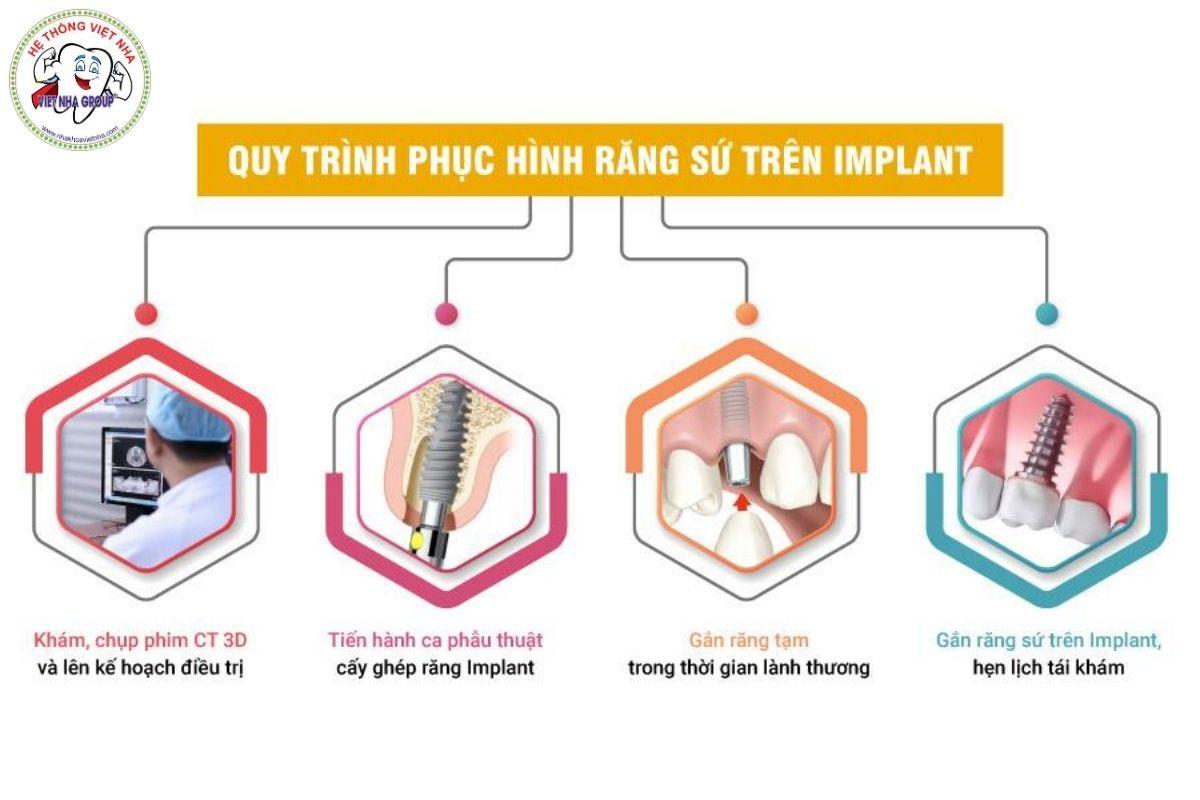 Quy trình phục hình răng sứ lên trụ Implant - Nha Khoa Việt Nha