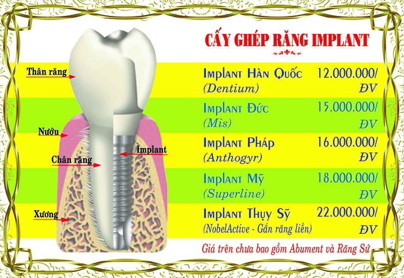 Bảng giá Cắm ghép Implant tại Nha Khoa Việt Nha