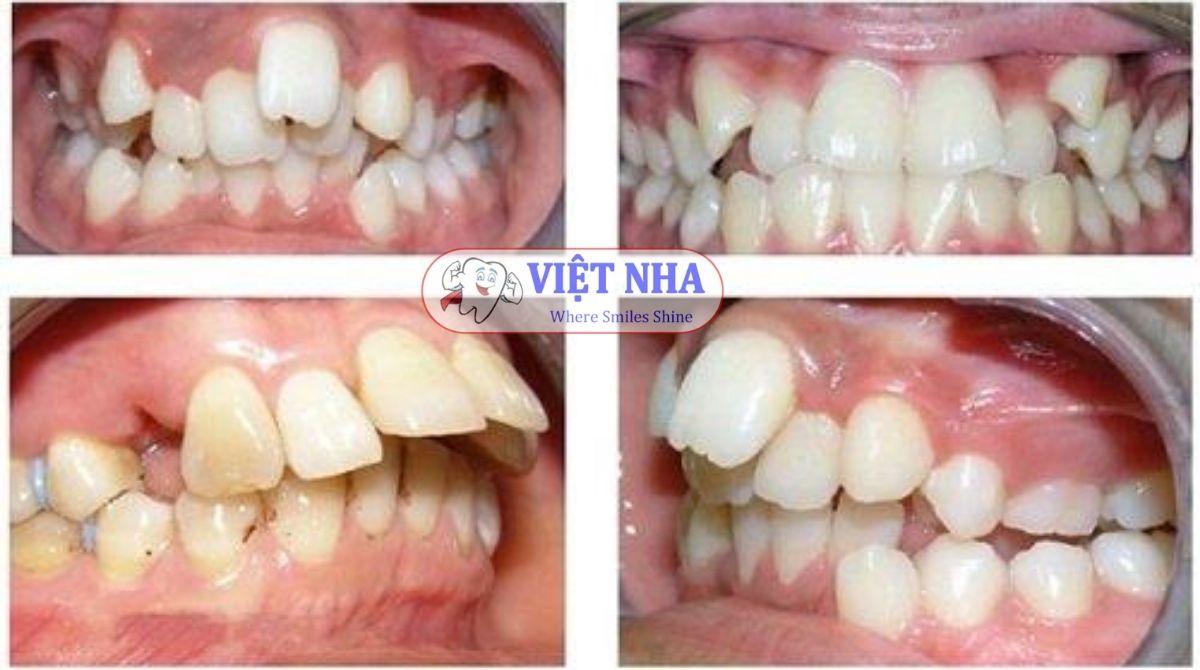 Đa số các bệnh nhân khi đi chỉnh nha đều gặp phải tình trạng răng và xương hàm mất cân đối - niềng răng có cần nhổ răng - Nha Khoa Việt Nha