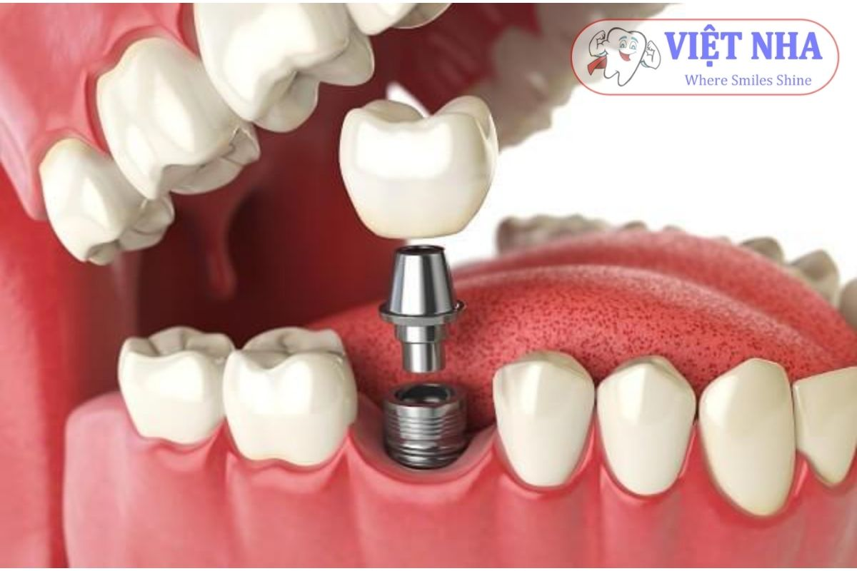 Cấy ghép răng implant là giải pháp hoàn hảo dành cho những trường hợp bị mất một hay nhiều răng