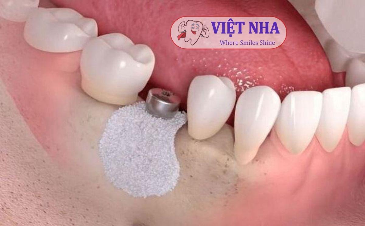 Ghép xương răng giúp giữ vững trụ Implant tốt hơn - Nha Khoa Việt Nha