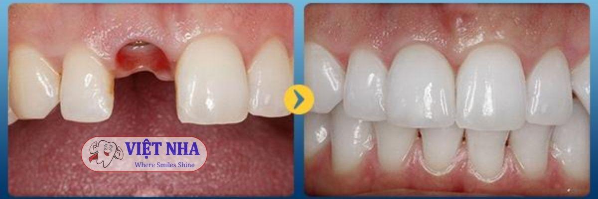 Bệnh nhân mất 1 răng- phục hình implant