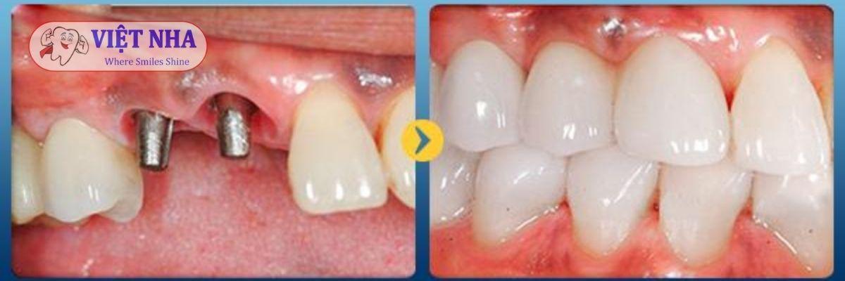 Bệnh nhân mất 2 răng- phục hình implant