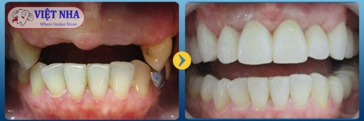Bệnh nhân mất 6 răng-phục hình implant