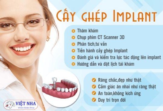 Những điều cần biết khi tiến hành cuộc cấy ghép răng Implant.
