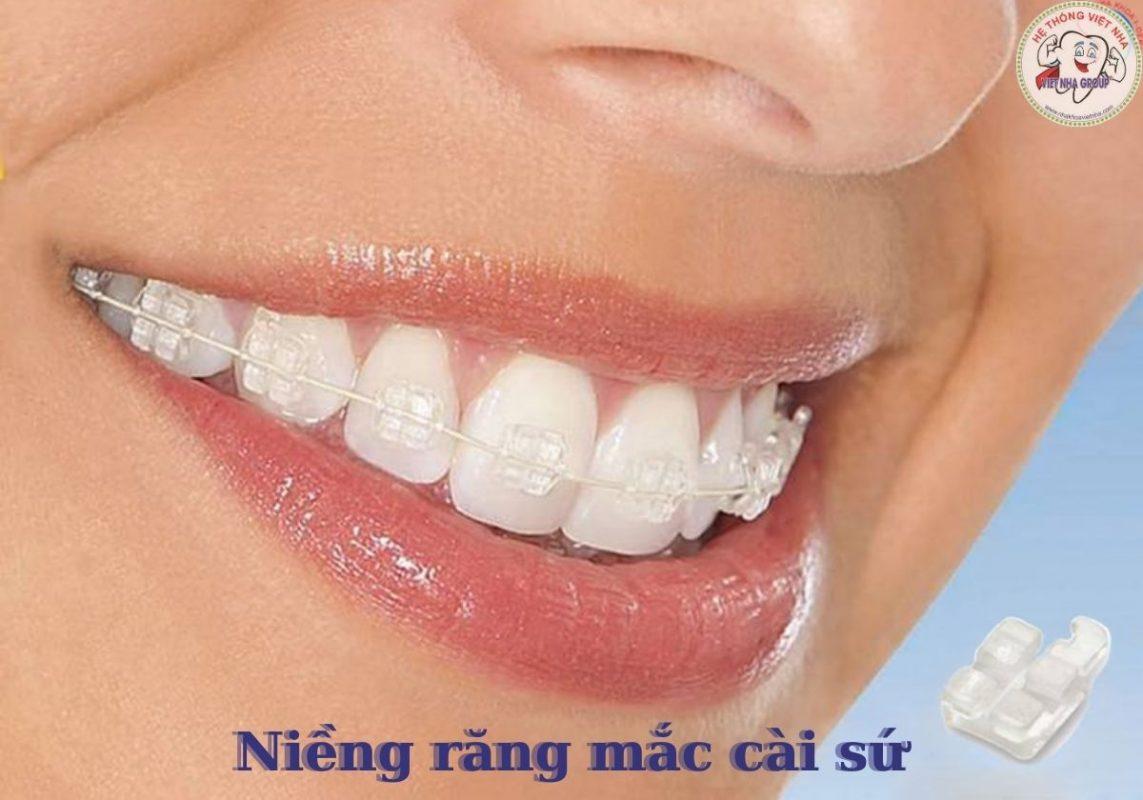 Niềng răng mắc cài sứ - Nha Khoa Việt Nha