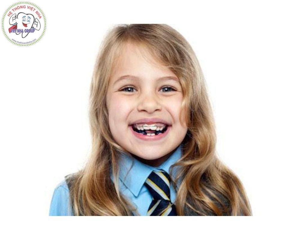 Thông thường niềng răng ở trẻ em không cần phải nhổ răng