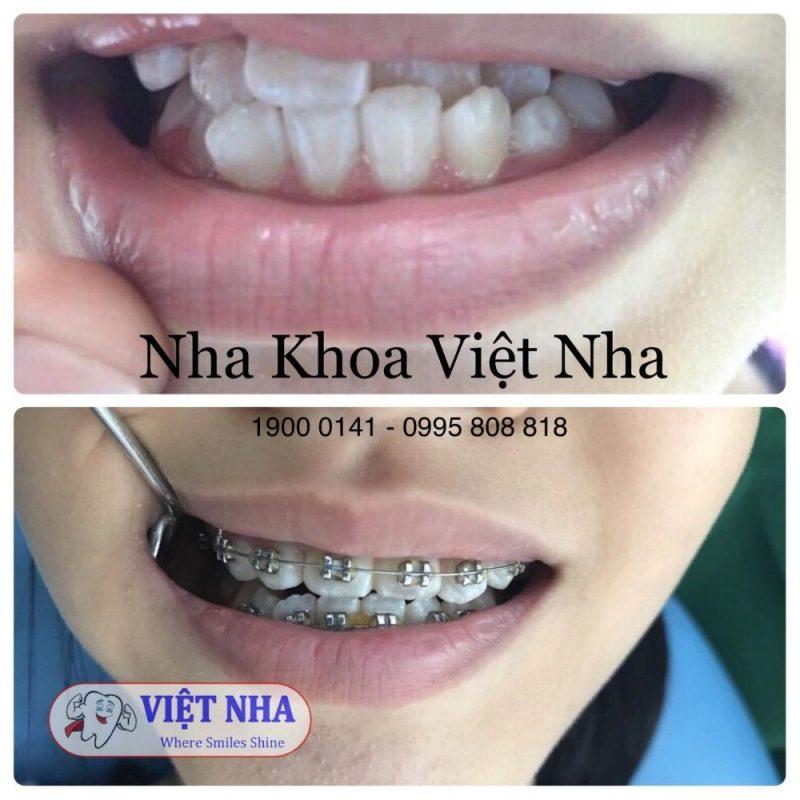 Khách hàng bị tình trạng răng lệch - niềng răng có cần nhổ răng - Nha Khoa Việt Nha