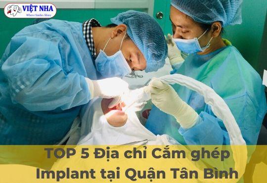 Địa chỉ cắm ghép Implant uy tín - Nha Khoa Việt Nha