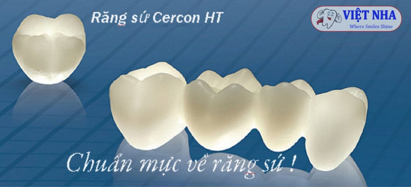 Răng sứ Cercon HT - Răng toàn sứ - Chuẩn mực về răng sứ