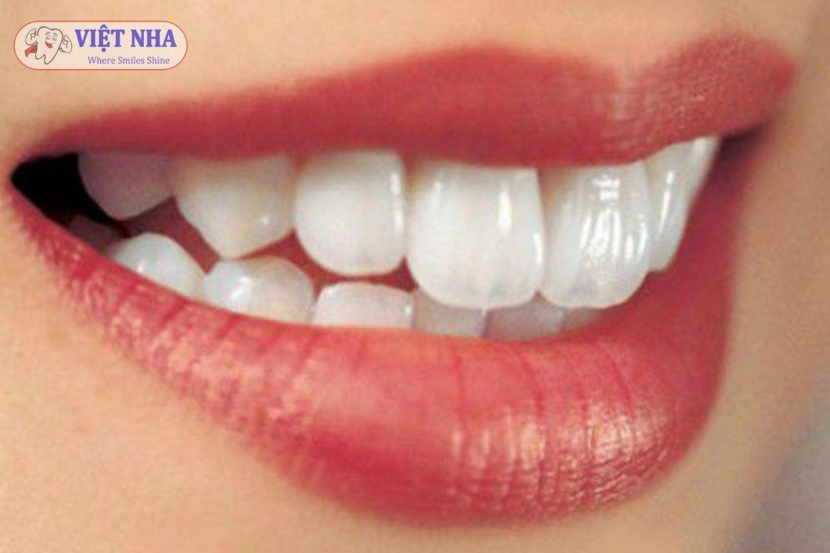 Bọc răng sứ giải pháp bảo vệ răng hữu ích