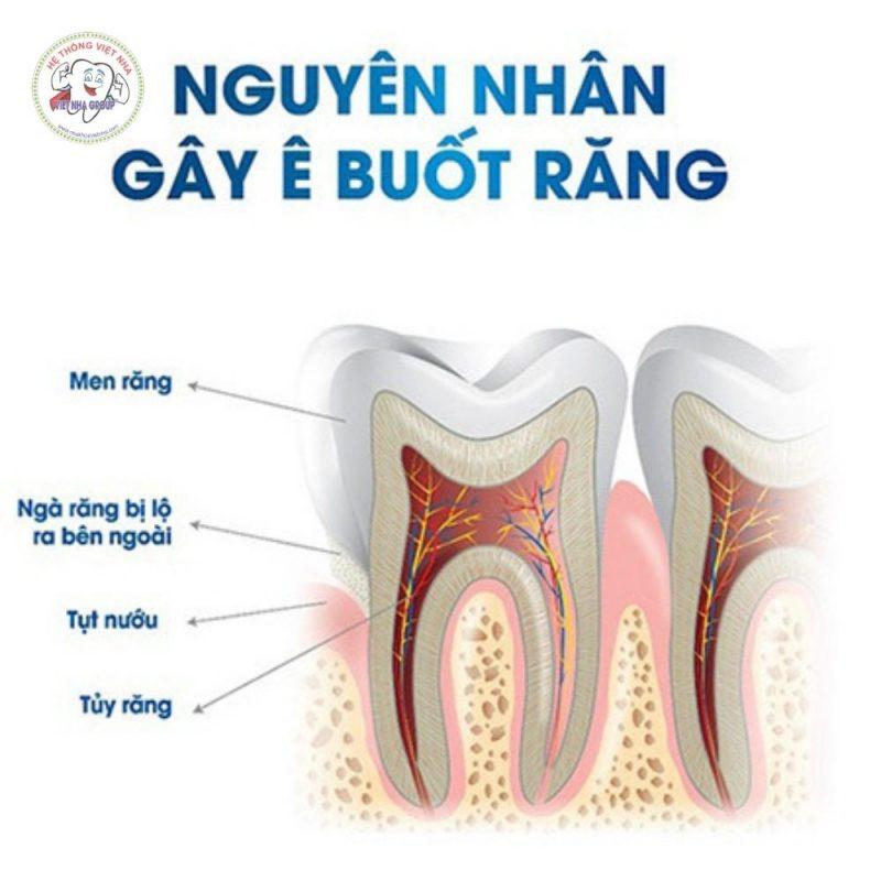 Nguyên nhân dẫn đến việc Răng ê buốt - Nha Khoa Việt Nha