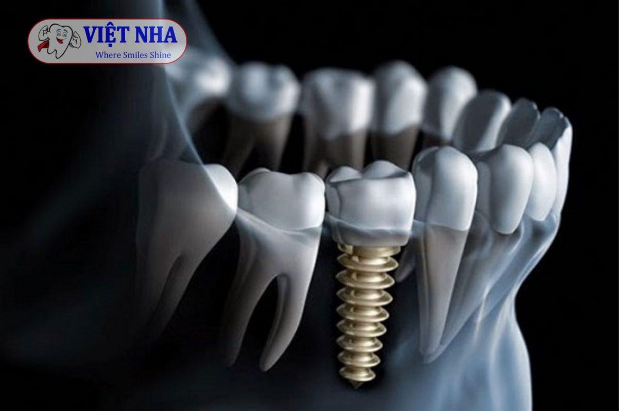 Trụ Osstem Implant có khả năng tích hợp với xương hàm nhanh