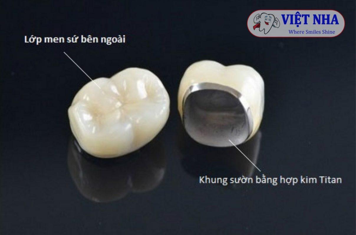 Cấu tạo của răng sứ Titan - Nha Khoa Việt Nha