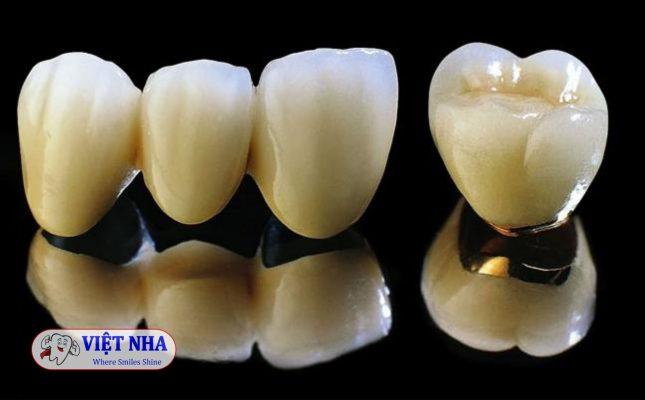 Răng sứ Titan - Nha Khoa Việt Nha