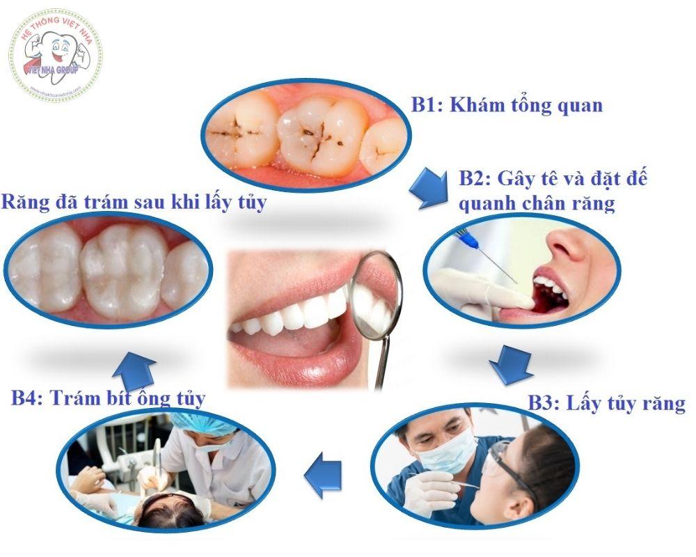 Các bước điều trị viêm tủy răng tại Nha khoa Việt Nha