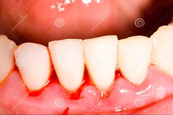 Chảy máu chân răng gây ảnh hưởng xấu đến sức khỏe răng miệng