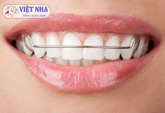 Hàm duy trì có tác dụng giúp cho răng ổn định nhanh chóng hơn, đảm bảo kết quả niềng răng