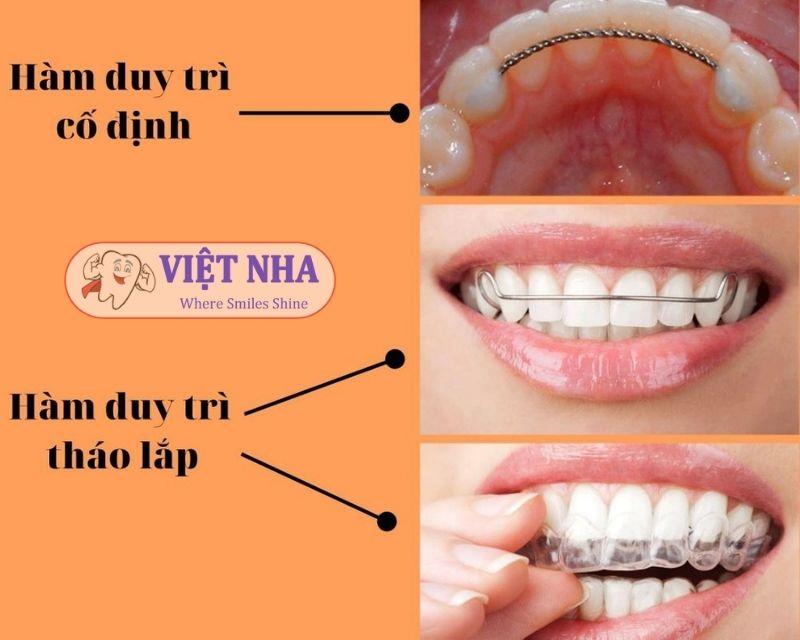 Hàm duy trì có 2 loại: Hàm duy trì cố định và hàm duy trì tháo lắp - Nha Khoa Việt Nha