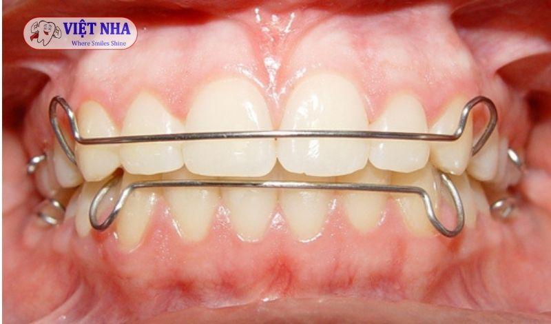 Hàm duy trì có tác dụng ổn định, duy trì kết quả niềng răng - Nha Khoa Việt Nha